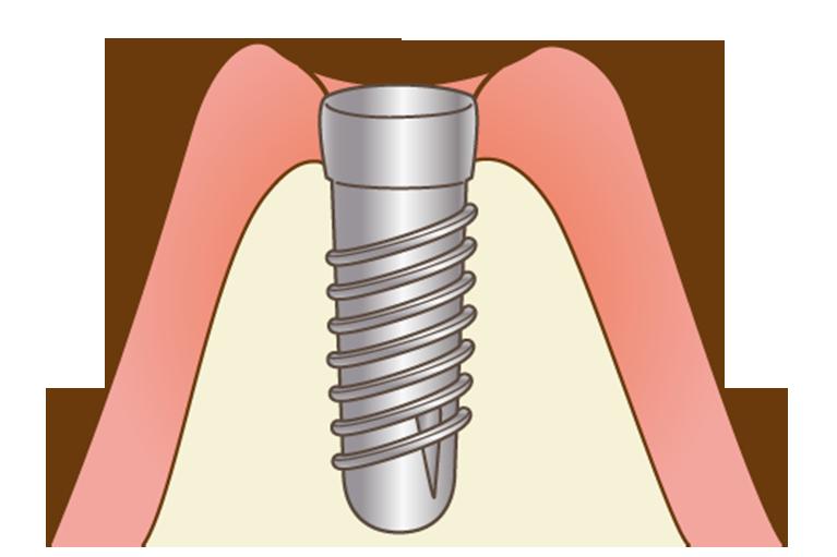 インプラント治療の一時手術