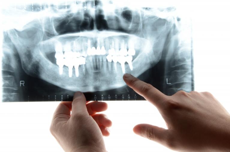 審美歯科治療の精密検査
