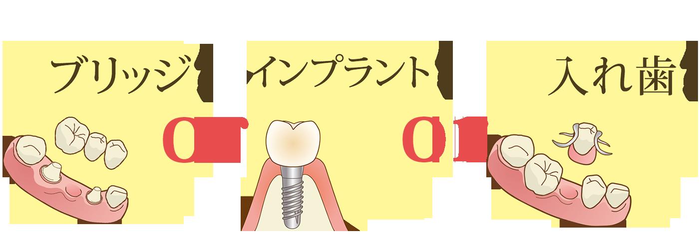 歯を失ってしまった時の選択肢